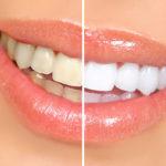 фасетите са тънки люспи от стоматологична керамика или фотополимер
